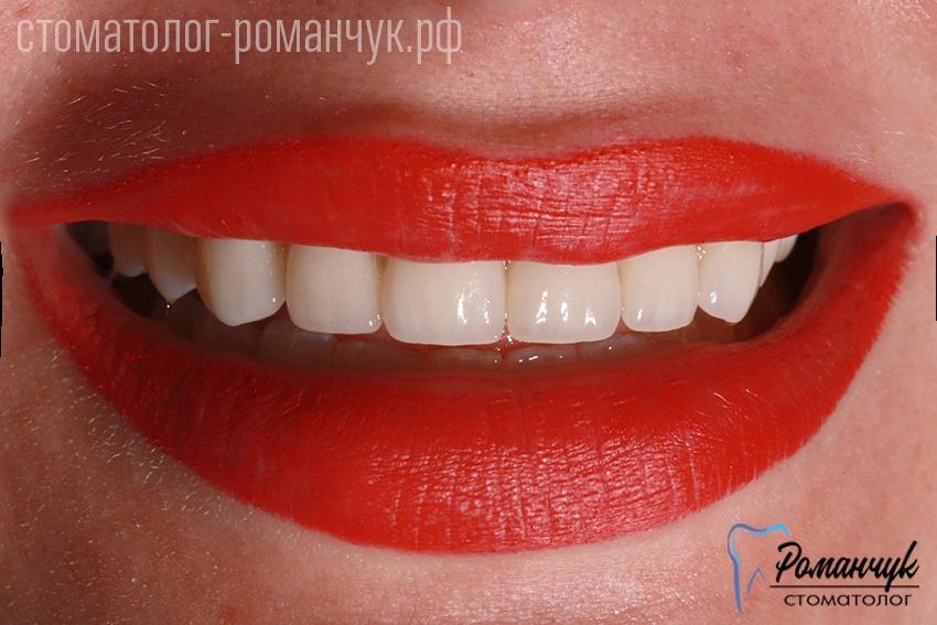 zubok-posle-1