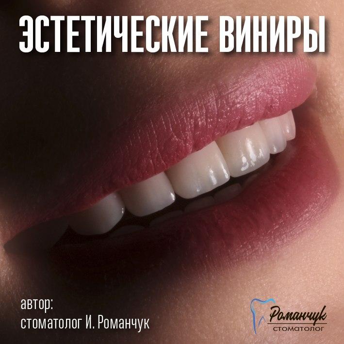 estetic_veneers_balashova