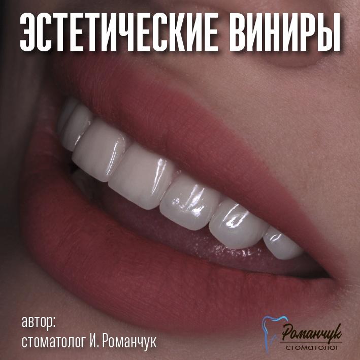 estetic_veneers_dyakova