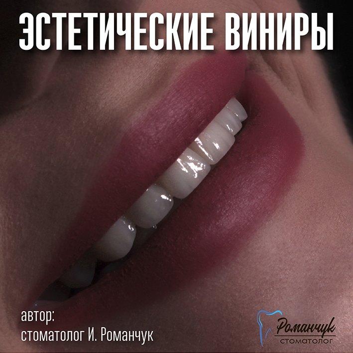 estetic_veneers_filchenko