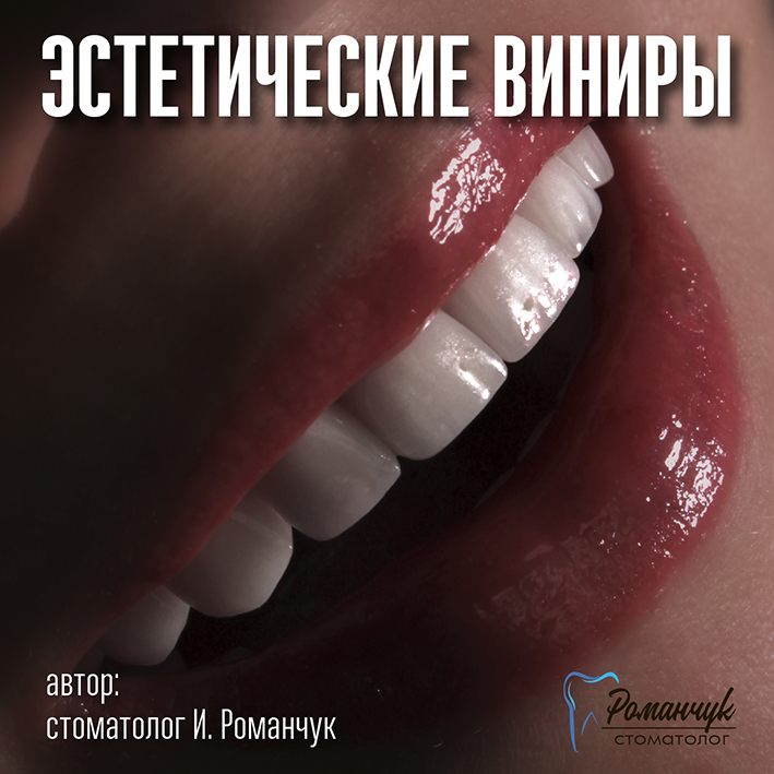 estetic_veneers_gaidar