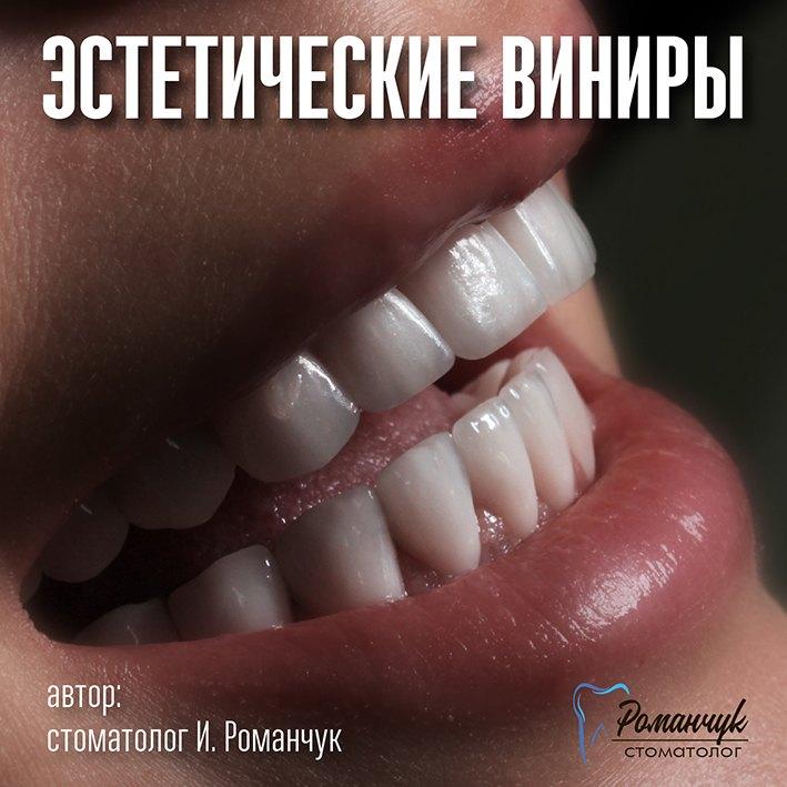 estetic_veneers_sokolova