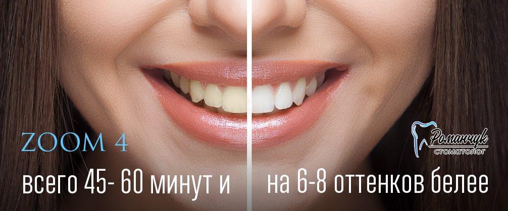 отбеливание зубов zoom-4 СПб